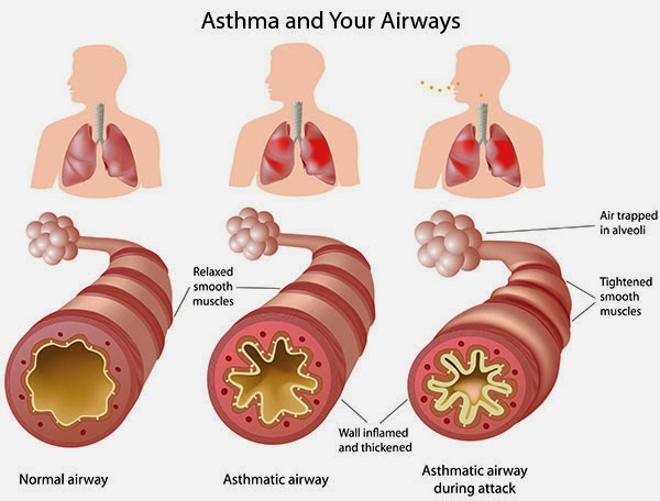 Information About Asthma