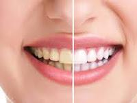 Cara memutihkan gigi dengan garam dijamin gigi kuning jadi putih
