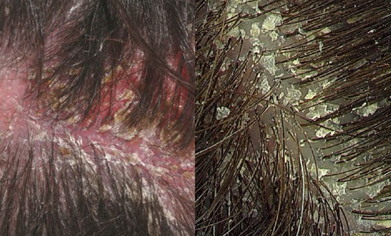 HEALTH: Home Remedies for Oily Scalp, Dry Scalp and ...