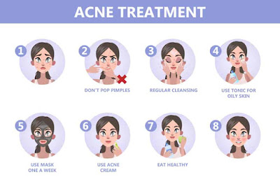 difference between acne and pimple