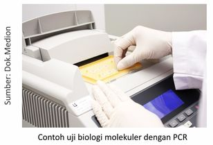Uji biologi molekuler PCR (Polymerase Chain Reaction)
