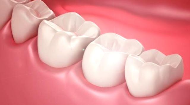 melindungi gigi dan gusi anda tetap sehat dan kuat