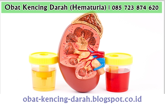 Obat Kencing Darah (Hematuria) yang Paling Ampuh Tradisional
