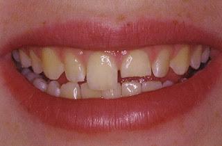 Làm gì khi răng bị vỡ