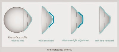 Orthokeratology or Ortho-K