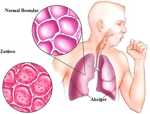 Zatürre Hastalığı Nedir