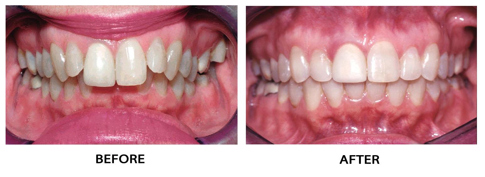 Al Fardan Orthodontics Common Problems