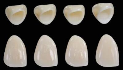 Quá trình bọc răng sứ titan như thế nào?