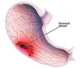 Five Types of Stomach Cancer
