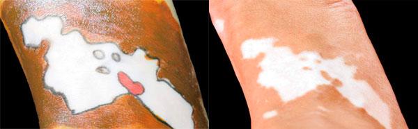 Kartiki-Bhatnagar-y su vitiligo