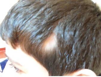 Que es alopecia areata en ninos