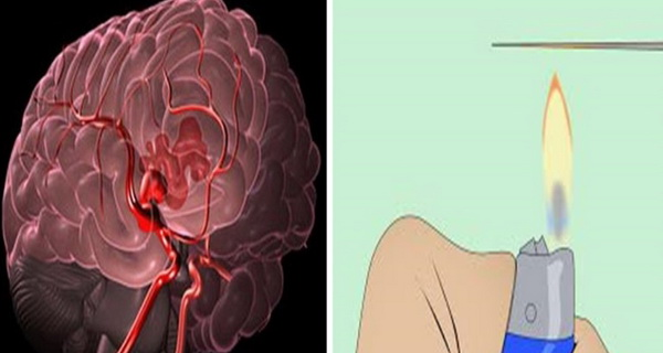 semnele accidentului vascular