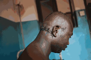 ( VERY GRAPHIC PHOTO) How Fulani Herdsmen Cut Part Of My Head With Matchet – 31-Year-Old Civil Servant