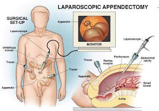Laparaskopi-appendiktomi