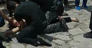Διαδηλώτρια τραυματίστηκε βαριά στο κεφάλι από αστυνομικούς στις Πρέσπες