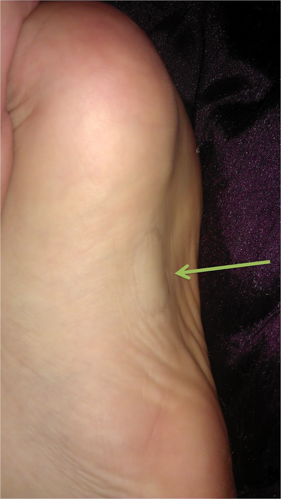 knot bottom of foot
