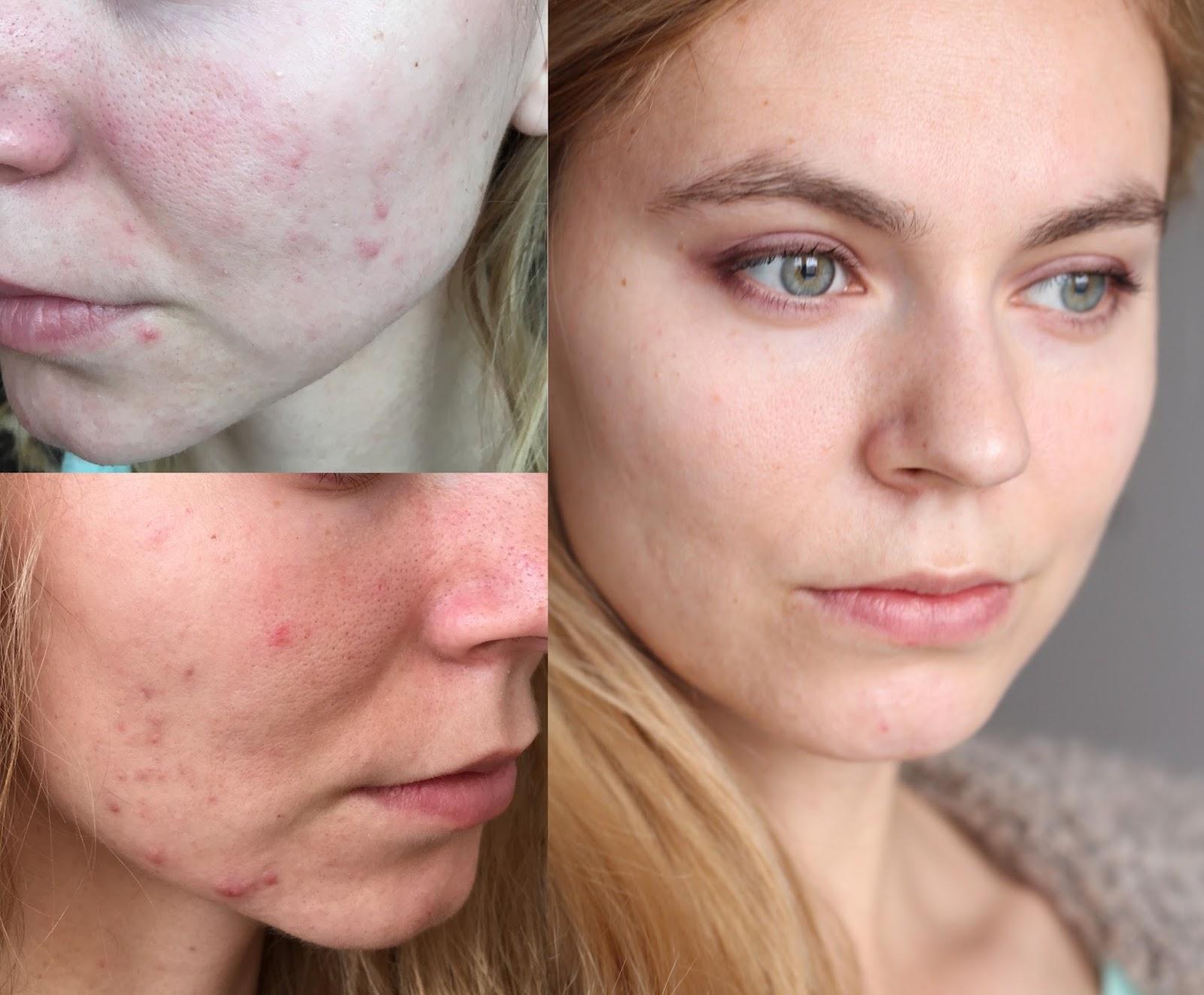 132867b91f Ako bojujem s cystickým dospeláckym akné (fotky pred a po)- My acne ...