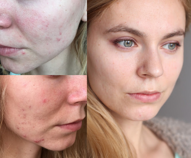 my acne story, photo before and after, akne v dospelosti
