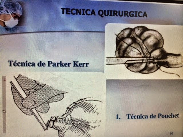 DR. JUAN HERNÁNDEZ ORDUÑA. : Apendicectomia abierta texto