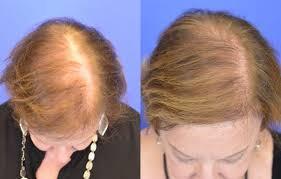 saç ekimi öncesi ve sonrası foto 18