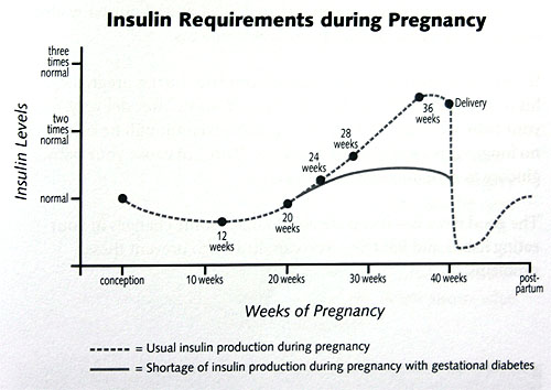 Gestational Diabetes Chart - FoyUpdate.blogspot.com
