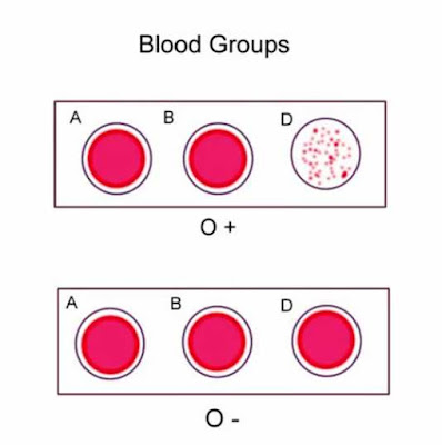 Blood-group-o-result