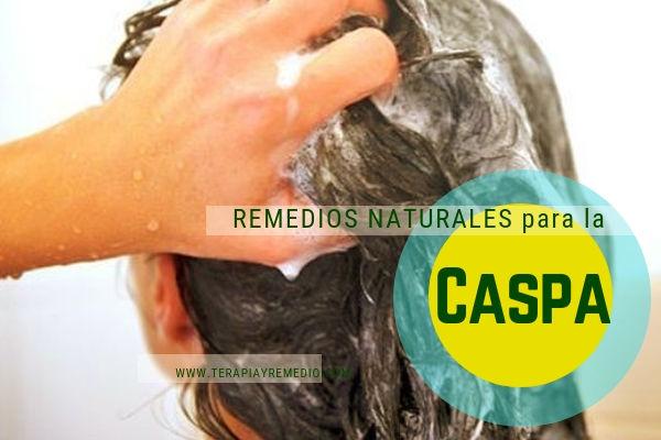 Remedios naturales para el tratamiento de la caspa