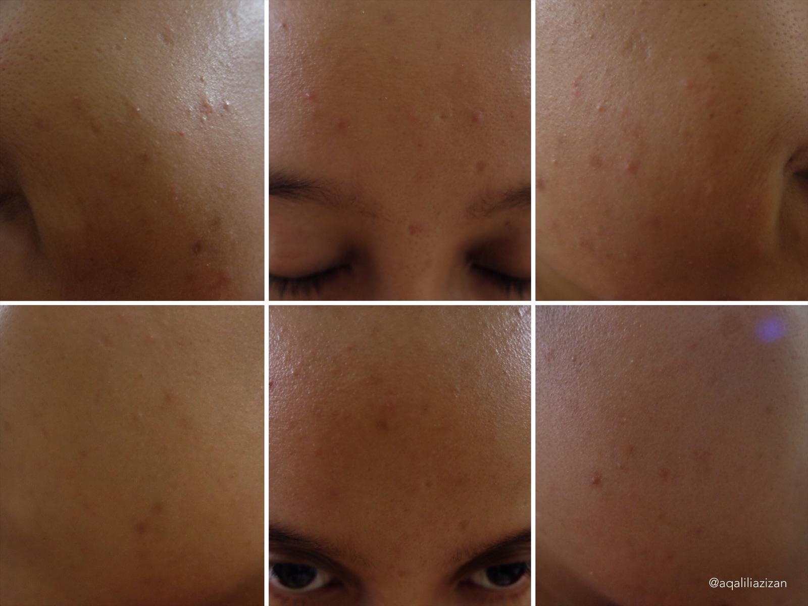 SPRIN-KLES Refreshing pH Balancing Face Toner & Mist Curitan Aqalili