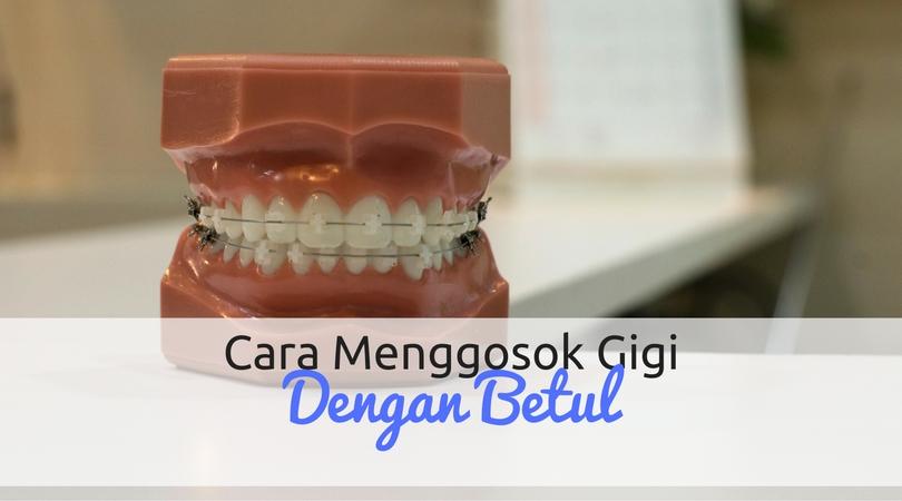 Cara Menggosok Gigi Dengan Betul