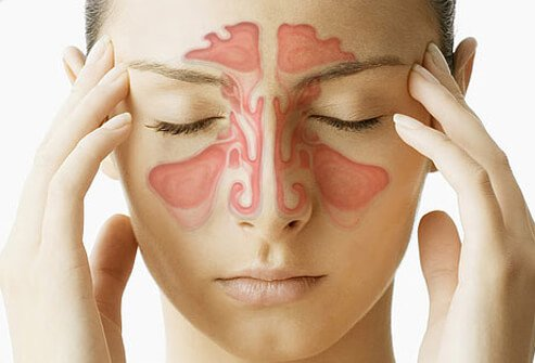 What is Sinus?