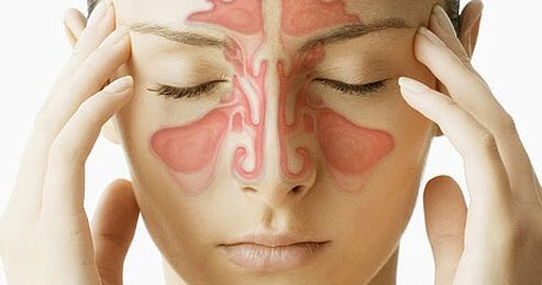 Is the treatment of Sinus possible with Ayurveda? ~ आयुर्वेदिक नुस्खे