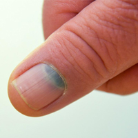 Mavi Tırnak Hastalığı Nedir? Tırnakta Mavi Leke Sebepleri ve Tedavisi