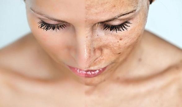 rawat wajah secara teratur