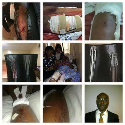 Domestic Violence: John Edobor, Man accused of breaking his wife's legs, finally speaks