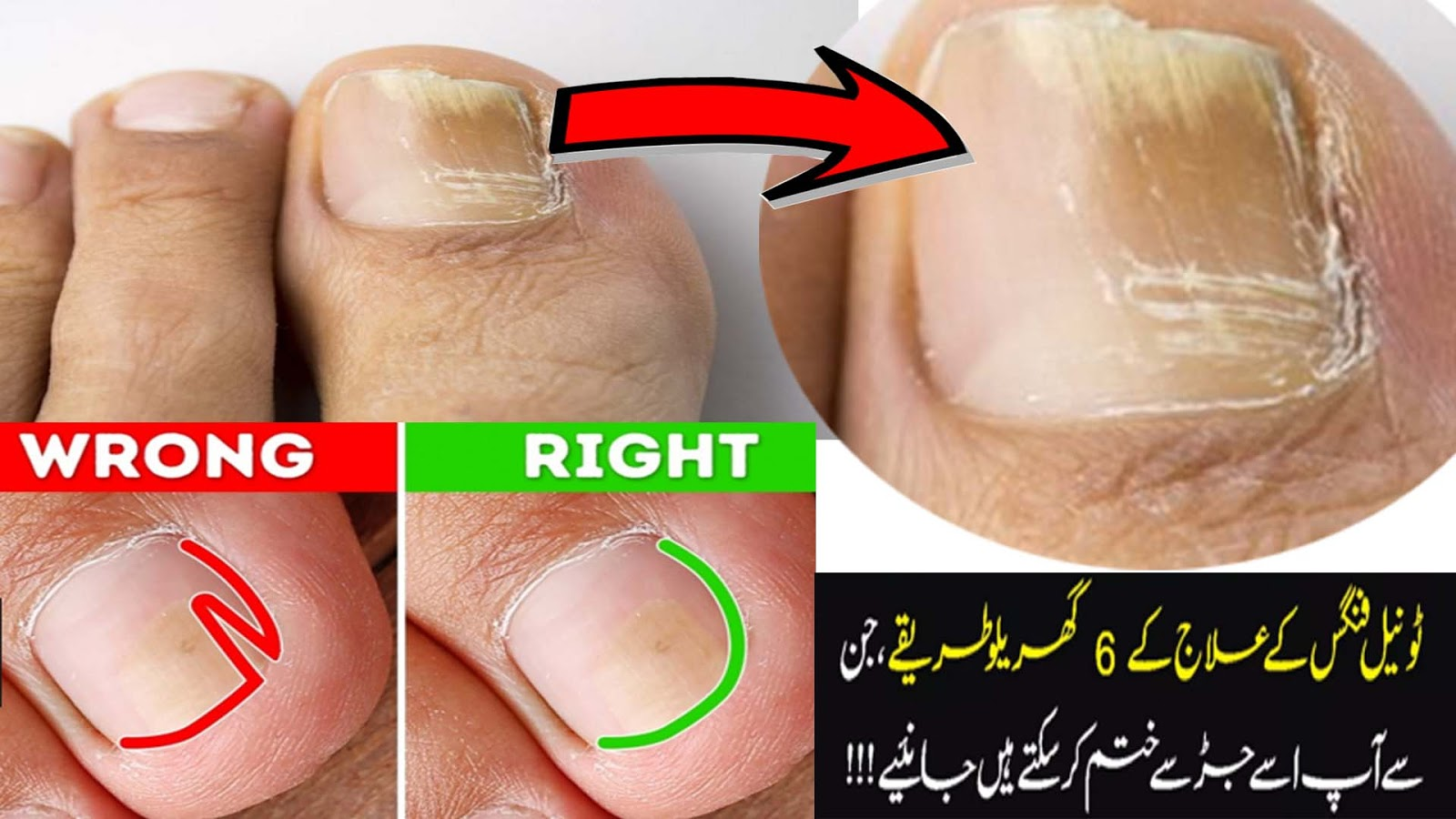 Nail Fungus Treatment -Best Toenail Fungus Treatment ;Fungus Or ...