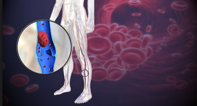 8 Signs That You Have Clogged Arteries Or Poor Blood Circulation And Need To Respond Urgently