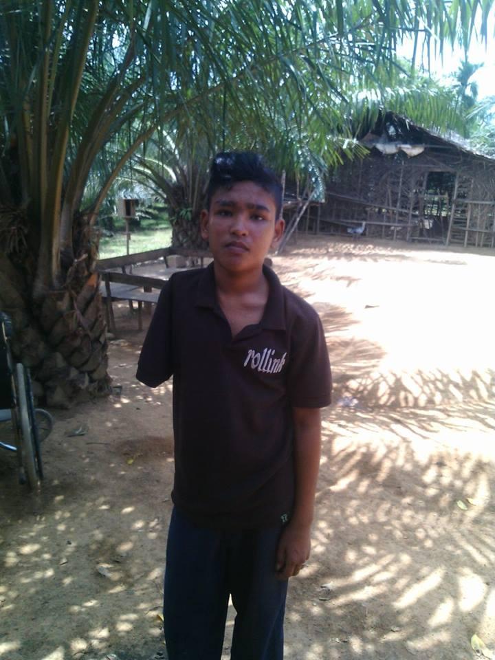 Anak Yatim yang Selalu jadi Ejekan kawan sekolahnya Membutuhkan Tangan Palsu