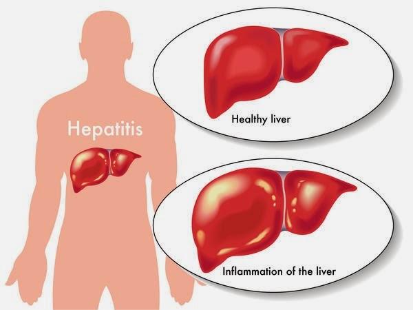 Hepatitis viral aguda tipo a 2014
