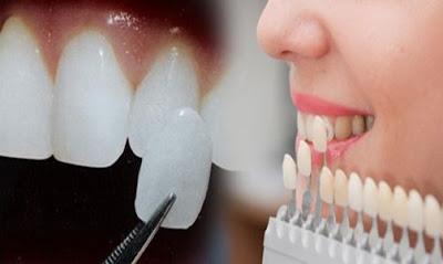 bọc răng sứ có nguy hiểm không -4