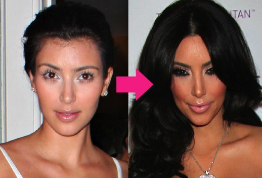 want to know that: Kim Kardashian Before and After Surgery