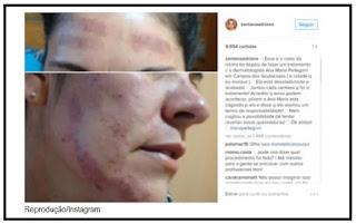 Dermatologista Ana Maria Pellegrini rebate ex-BBB Adriana Sant'anna na web.