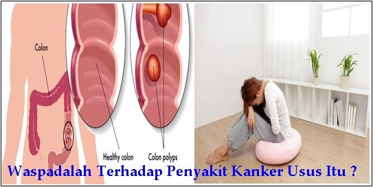 Faktor Risiko Penyakit Kanker Usus