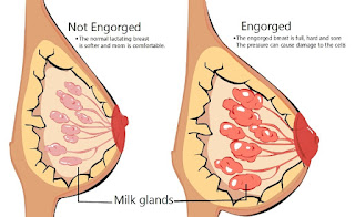 Dealing with Engorged Breasts after Birth