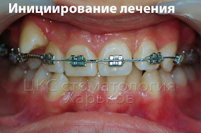 Фото зубов в начале лечения брекетами