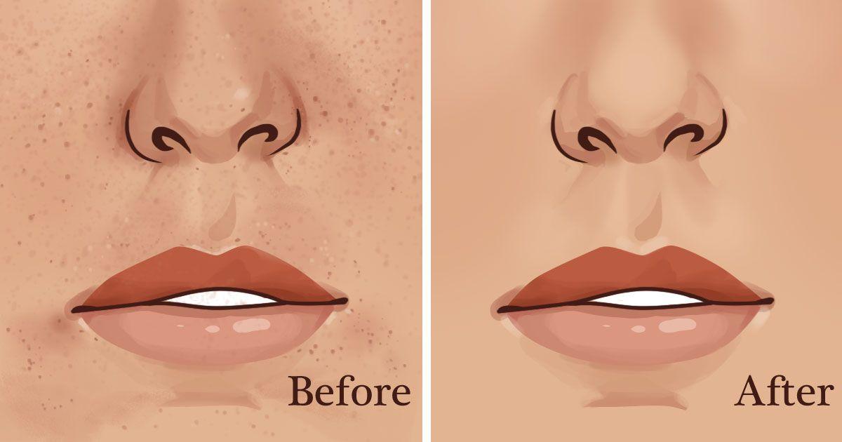 ljestve za mršavljenje lice sagorijevača masti
