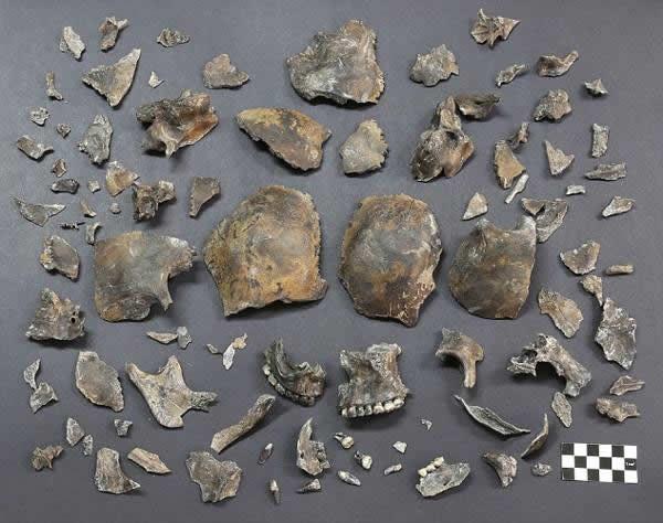 Fragmentos del cráneo alargado encontrado.