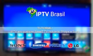 Tutorial - Como assistir IPTV em qualquer SmarT TV incluindo Philips e Sony (Atualizado)
