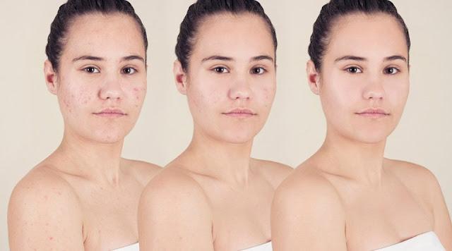 Top 10 Acne Myths