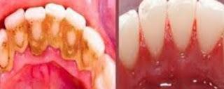 Karang gigi atau disebut juga kalkulus gigi atau tartar merupakan tumpukan yang keras kek gobekasi Karang Gigi