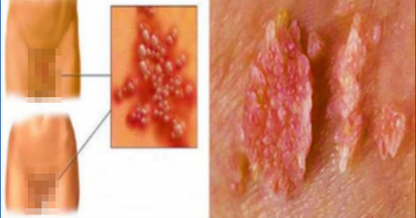 The gallery for --> Human Papillomavirus Infection Women